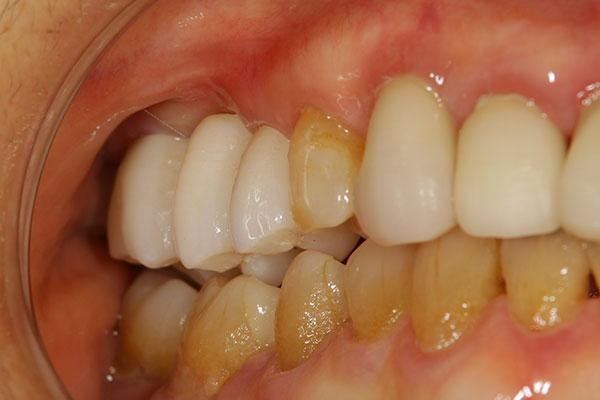 奥歯 抜歯